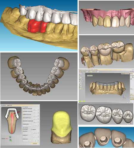 Cad Cam dentistico